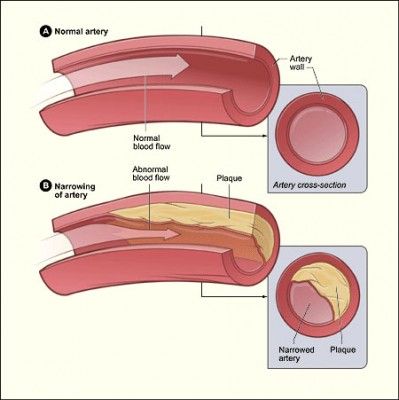 colesterol-01