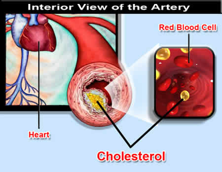 colesterol-02