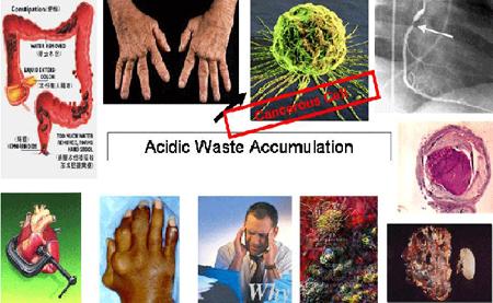 acidosi1