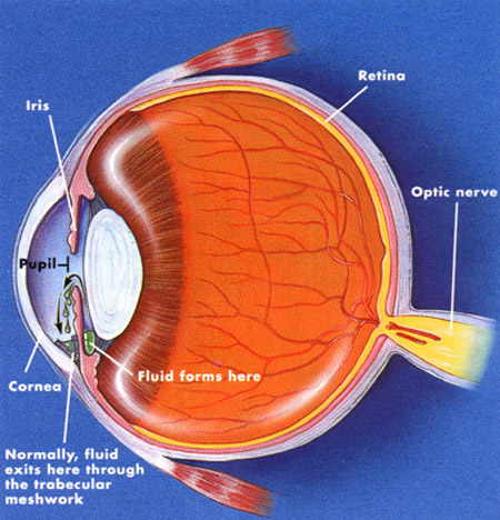 glaucoma 01