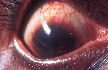 glaucoma 04