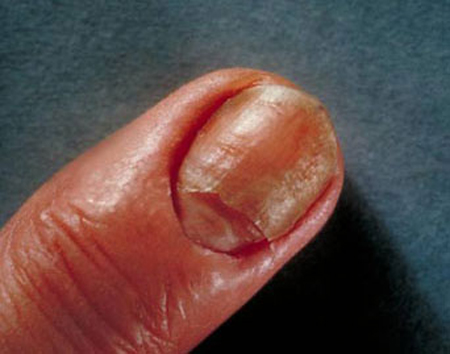 candidiasi ungles