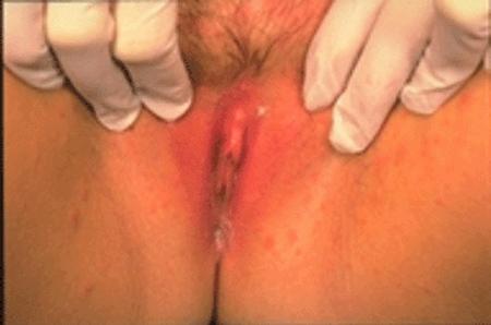 candidiasi vulvar