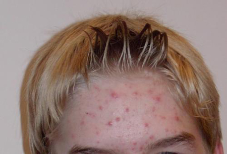 acne 01