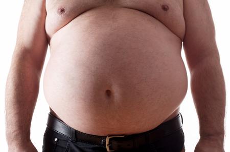 Obesitat 01